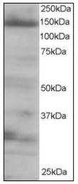 AP08564PU-N - EIF4ENIF1 / 4E-T