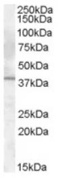 AP16737PU-N - Interleukin-12 beta / IL12B