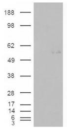 AP16741PU-N - GCNT3