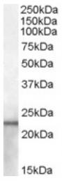 AP16743PU-N - Lipocalin-2