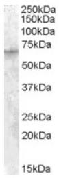 AP16745PU-N - IGF2BP2