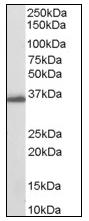 AP08571PU-N - AKR1C3 / DDH3