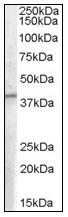 AP08572PU-N - PCID1 / EIF3M