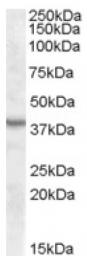 AP16753PU-N - ASNA1 / ARSA