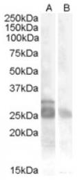 AP16756PU-N - Myogenic factor 5 (MYF5)