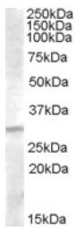 AP16757PU-N - IGFBP4