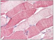 AP08576PU-N - Arylsulfatase B