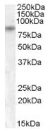 AP16758PU-N - TRPV5 / ECAC1