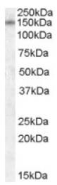 AP16764PU-N - DLG1