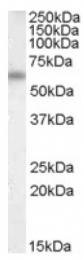 AP16765PU-N - Vitamin D-binding protein