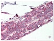 AP08581PU-N - Prohibitin-2