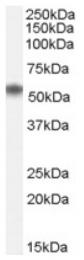 AP16635PU-N - NACC1 / BTBD14B