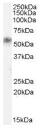 AP16652PU-N - KLK1 / Kallikrein-1