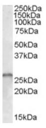 AP16655PU-N - SMN1 / SMN2
