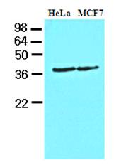 AM09078PU-N - CSNK1A1
