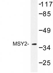 AP06763PU-N - YBX2