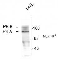 AM08259PU-N - Progesterone receptor