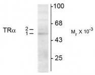 AM08269PU-N - THRA / ERBA1