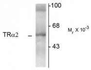 AM08270PU-N - THRA / ERBA1