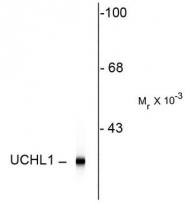 AM08273SU-N - UCHL1 / PGP9.5