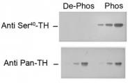 AP08761PU-N - Tyrosine 3-monooxygenase (TH)