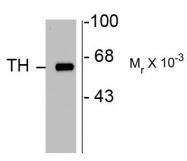 AP08757PU-N - Tyrosine 3-monooxygenase (TH)
