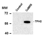 AP08754PU-N - Tryptophan 5-hydroxylase 2 (TPH2)