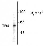 AP08752SU-N - NR2C2