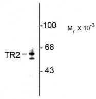 AP08751SU-N - NR2C1
