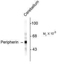 AP08725SU-N - Peripherin
