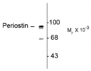 AP08723AF-N - Periostin