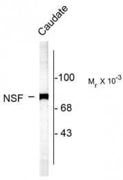 AP08714PU-N - NSF