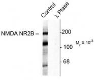 AP08710PU-N - NMDAR2B