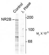 AP08708PU-N - NMDAR2B