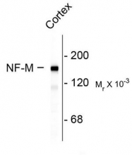 AP08697SU-N - Neurofilament  M (160 kD)