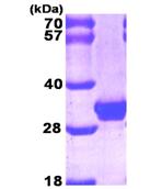 AR09297PU-L - Galectin-3