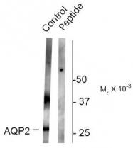 AP08613PU-N - Aquaporin-2 / AQP2