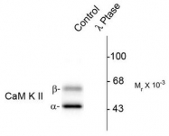 AP08617PU-N - CAMK2A/B