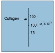 AP08623AF-N - Collagen type I