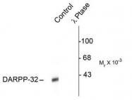 AP08629PU-N - DARPP32