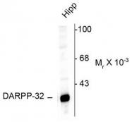 AP08628PU-N - DARPP32