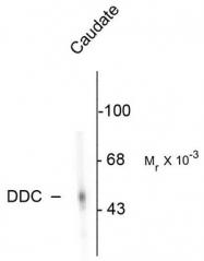 AP08631PU-N - AADC / DDC