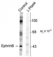 AP08643PU-N - Ephrin-B1