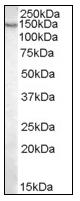 AP08821PU-N - Pyruvic carboxylase (PC)
