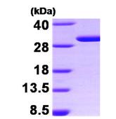 AR09318PU-L - 14-3-3 protein sigma / SFN
