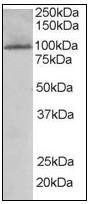 AP08837PU-N - TAO kinase 3 (TAOK3)
