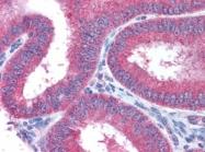 AP09031AF-N - AP3 complex subunit sigma-2 / AP3S2