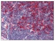 AM08400PU-N - Beta-2-microglobulin