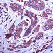 AP08988PU-N - Endoplasmin / HSP90B1 / TRA1
