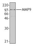 AM08414PU-M - MMP-9